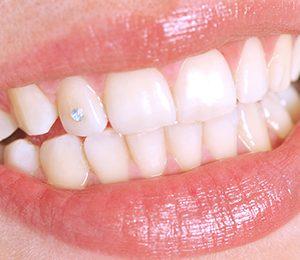 Zahnschmuckstein